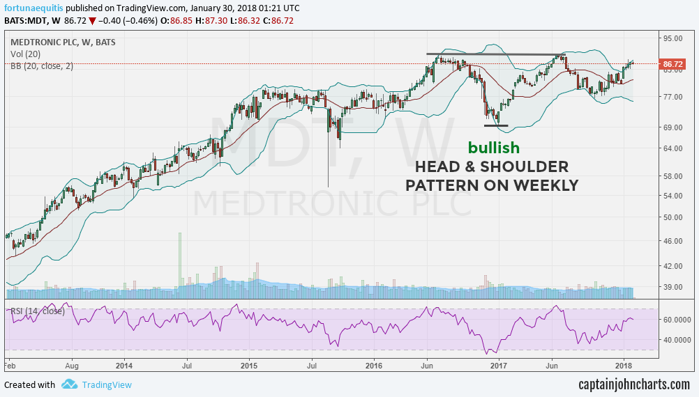 medtronic mdt bullish head and shoulders pattern chart_year 2018 stocks